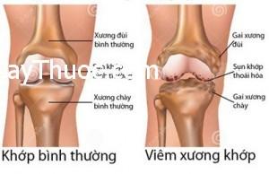 Viem-xuong-khop-