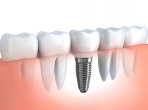 cay-ghep-implant-benhvn(1)