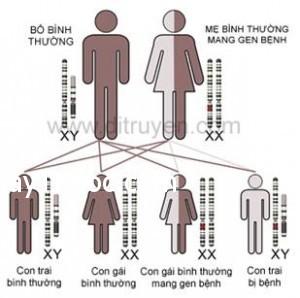 benh-teo-co-Duchenne-benhvn