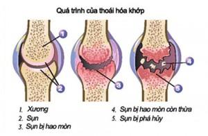 Can-lam-gi-de-phong-thoai-hoa-khop-1