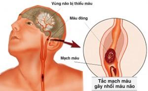 Cho-xem-thuong-roi-loan-tuan-hoan-nao-1