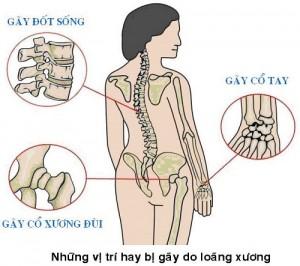 Dau-hieu-ban-bi-loang-xuong-ma-khong-biet-2