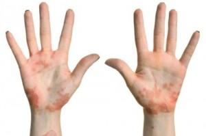 Nha-qua-sach-khien-tre-em-de-bi-eczema_1