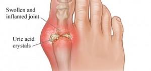 gout-big-toe-520x245