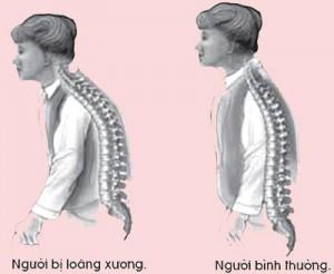 loang-xuong-d14ec