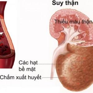 bieu-hien-benh-suy-than-man-tinh-500x500_c