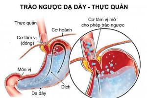 cac-benh-tieu-hoa-thuong-gap-1