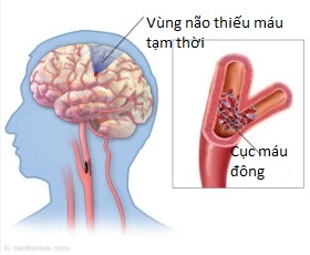 thieu-mau-nao-co-nguy-hiem-1