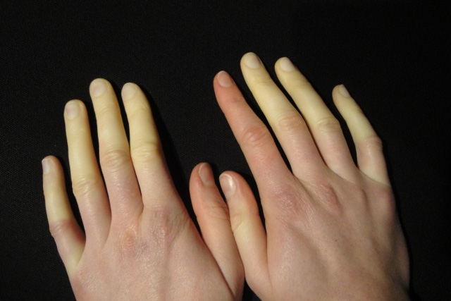 10575410-raynaud-syndrom-1485841655-650-30a705647e-1485958396-1491720979359
