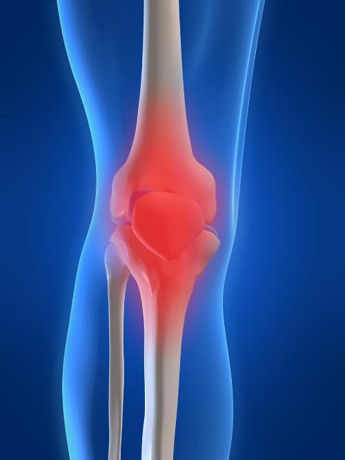 knee_pain_31101046