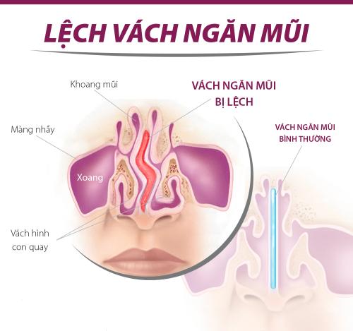 lech-vach-ngan-mui_23152599