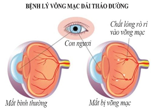 cac-benh-ve-mat-thuong-gap-o-nguoi-benh-dai-1.png