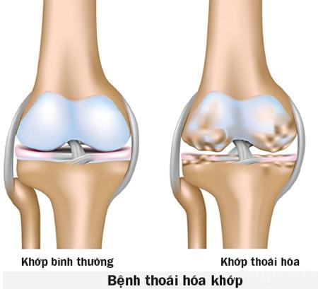 thoai-hoa-khop-1