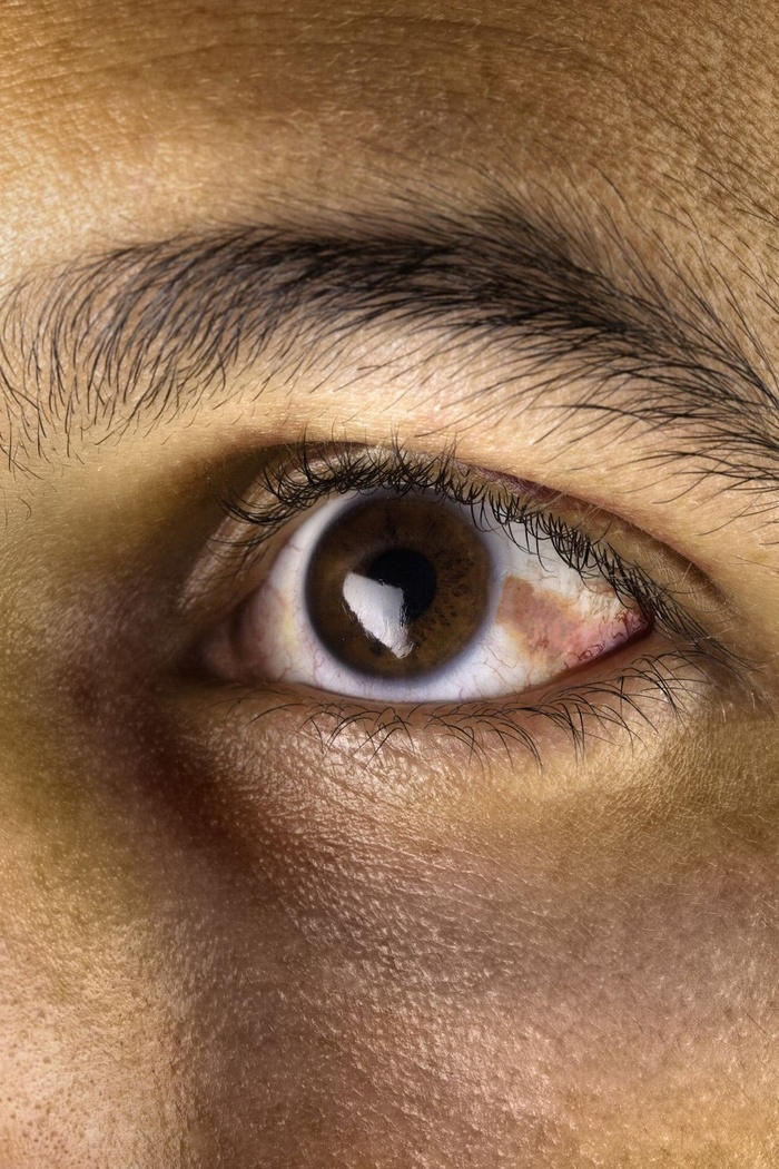10-what-eyes-say-about-your-health-164013882