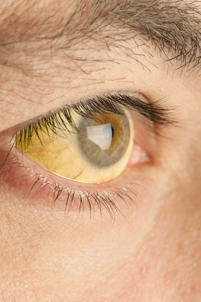12-what-eyes-say-about-your-health-164035192