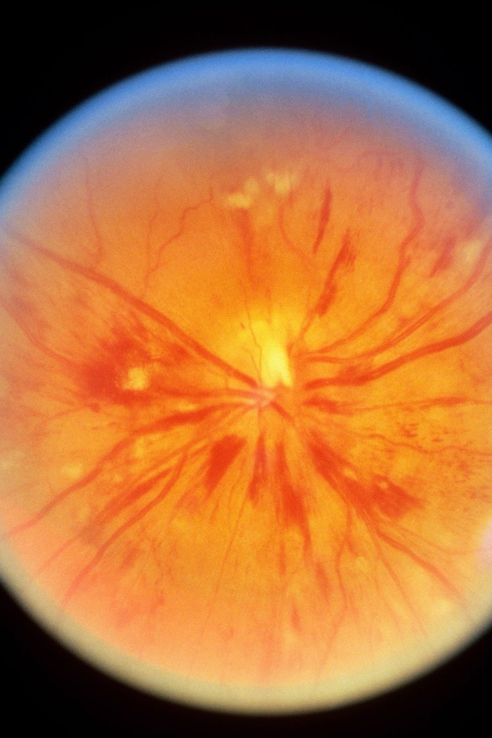 8-what-eyes-say-about-your-health-163950997